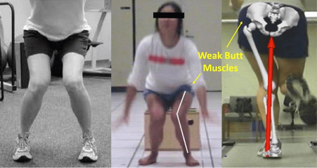 weak butt muscles and valgus knee