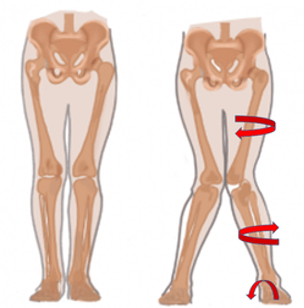 valgus knee causes hip and ankle forces